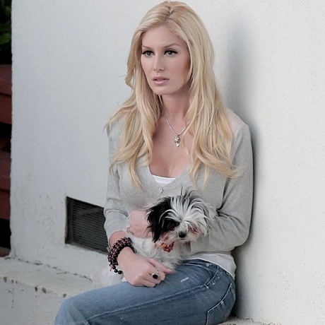 heidi montag scars life and style. heidi montag plastic surgery